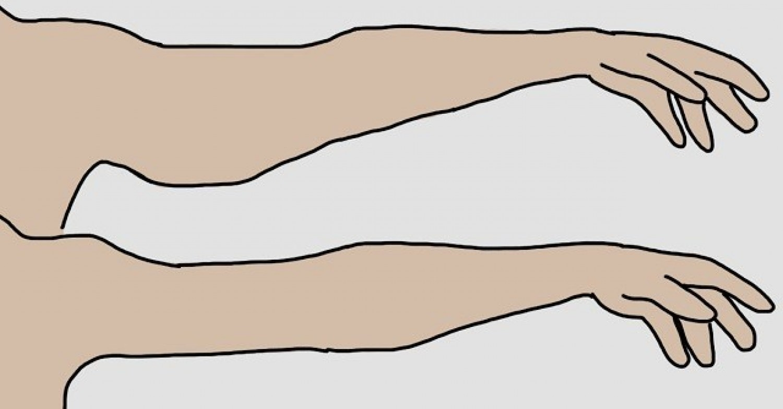 Naponta csak 3-4 perc és vége a löttyedt karoknak!