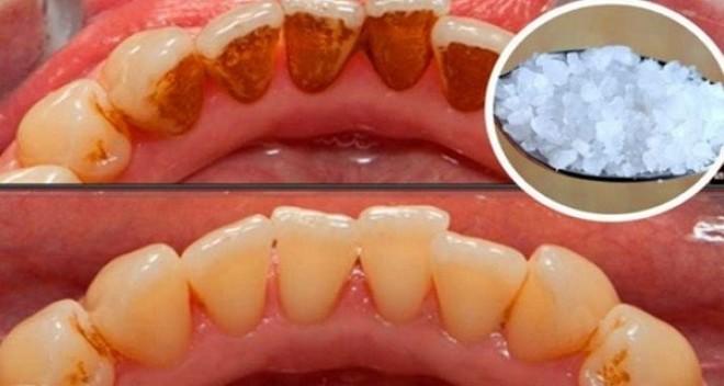 A legsárgább fogakat is kifehéríti ez a keverék, leszedi a fogkövet, és az nem is jön vissza