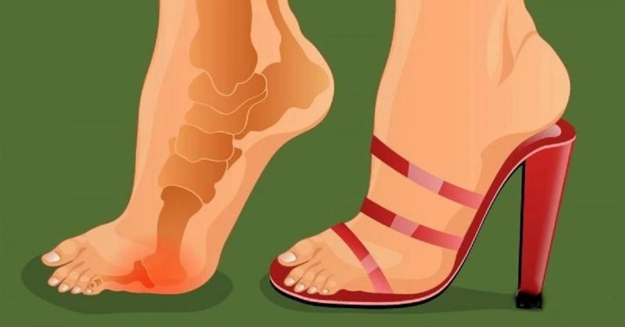 Ez a trükk segít, hogy többé ne fájduljon meg a lábad, ha magassarkú cipő van rajtad!